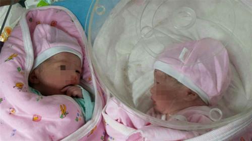 顺产产房接生脐带步骤图片